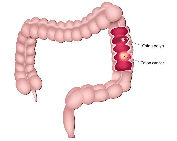 The Difference Between Colon Cancer And Hemorrhoids