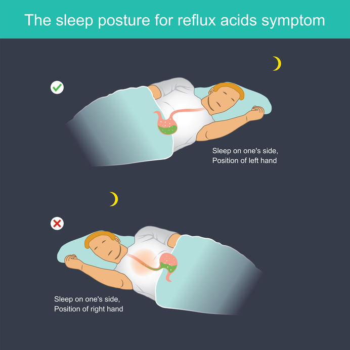 The sleep posture for reflux acids symptom